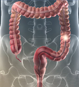 A scope moving through the colon in a colonoscopy