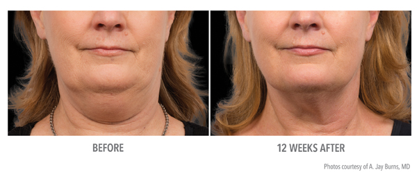 Before and after photo of a patient's chin after CoolSculpting