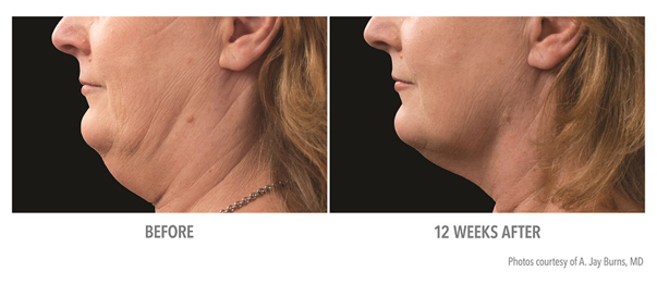Before and after photo of patient's chin after CoolSculpting