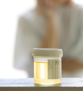 Woman looking at urine sample