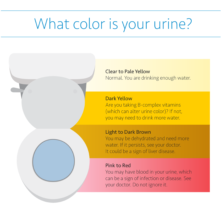 Infographic on urine colors