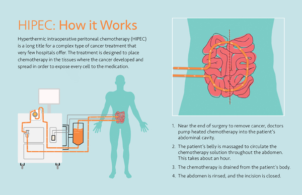 how hipec works infographic