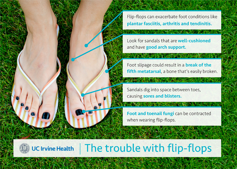 the trouble with flip flops infographic
