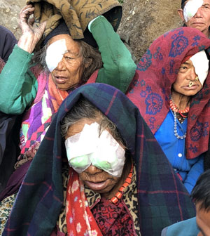 nepalese women after cataract surgery