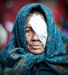 woman after cataract surgery nepal