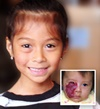 Tiffany Chancheya, hemangioma patient