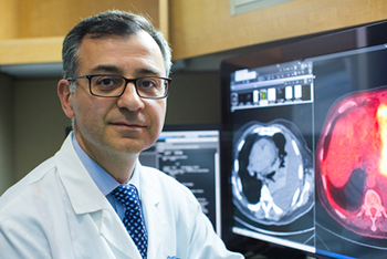 Mohsen Davoud, MD, UCI Health pulmonologist and lung cancer expert