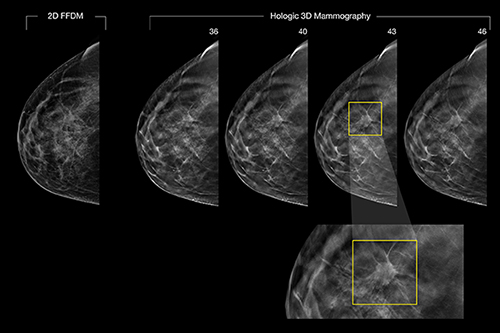 3-D mammography detects cancer in patient where 2-D image, left, does not.