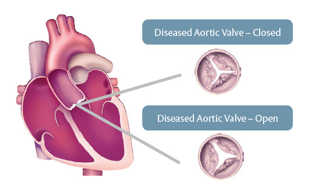 diseased heart valve with aortic stenosis