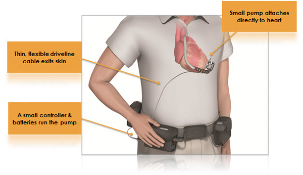 lvad illustration