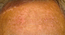 UC Irvine Health vitiligo patient after excimer laser treatment