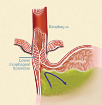 View of a normal lower esophageal sphincter