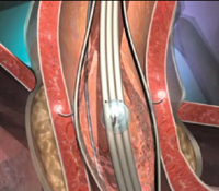 Stretta therapy delivers radiofrequency energy to the lining of the lower esophageal valve.