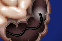 Colonoscopy scope in colon