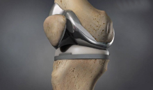 kneereplacement