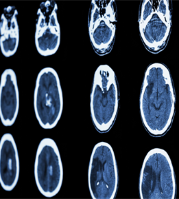 Brain bleeds and comprehensive stroke centers