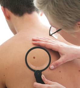 physician checking mole on male patient's back; melanoma immunotherapy shows promise