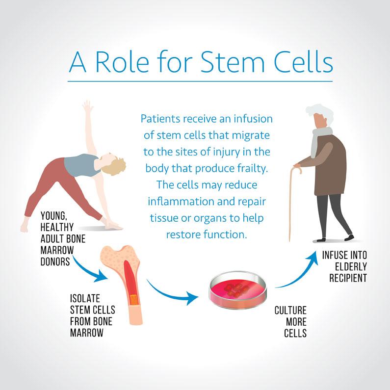 Frailty Stem Cell Infographic