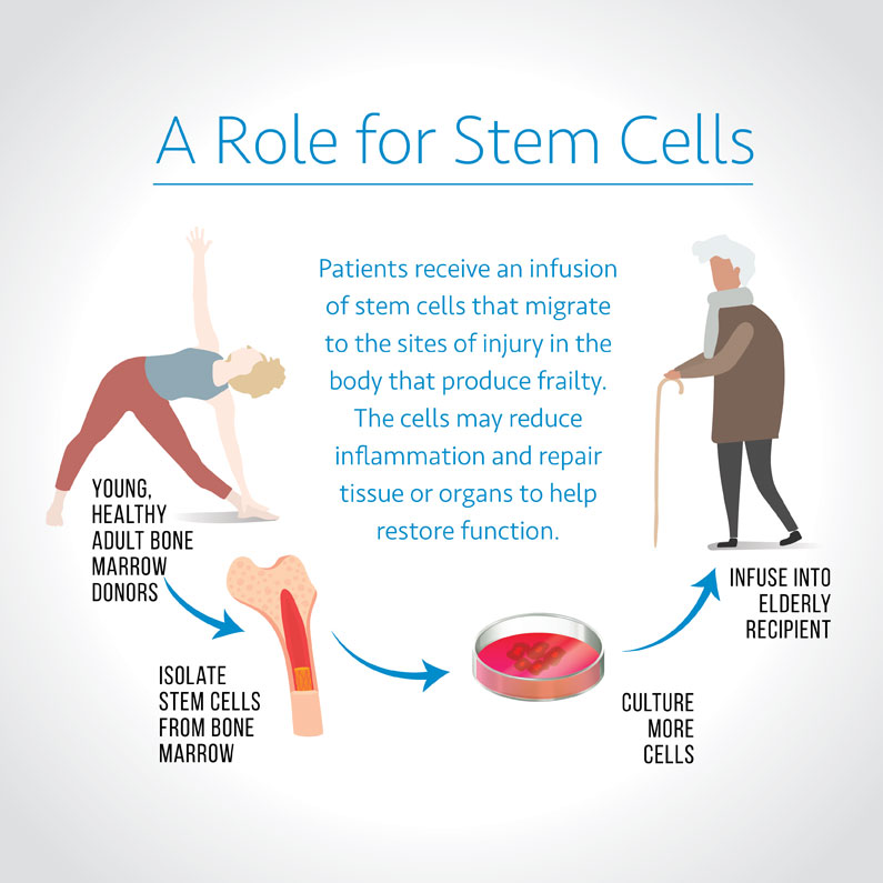 frailty stem cell infographic