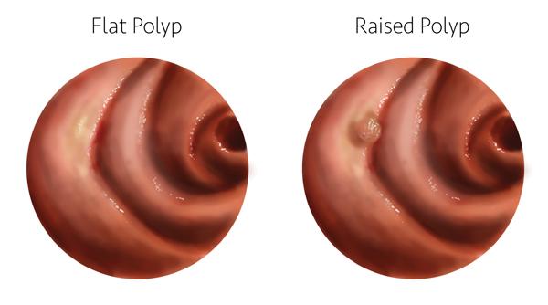 flat polyp 600