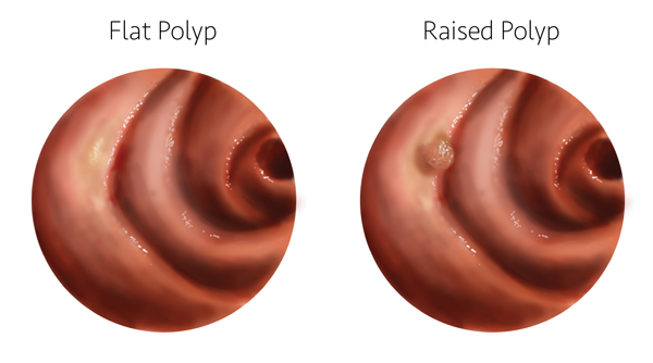 Flat Polyps Why Finding Them Requires Skill Uci Health Orange County Ca