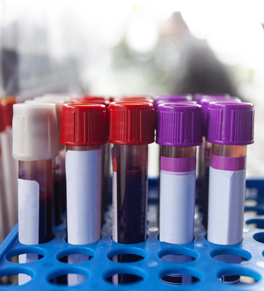 What do your lab test results mean? | UCI Health | Orange County, CA