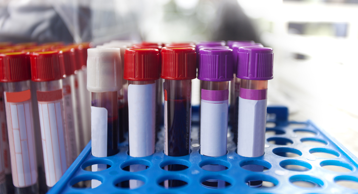 what do your lab test results mean