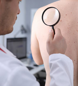 doctor checking transplant patient for skin cancer with magnifying glass