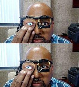 UCI professor Ian Harris demonstrates a digital prosthetic eye that can mimic the movements of the health eye.
