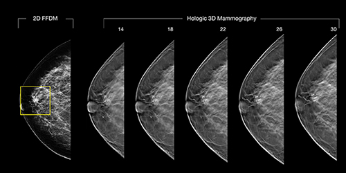A potential malignancy in a patient's 2-D mammogram, left, turns out to be nothing suspicious in 3-D imaging of the same breast.