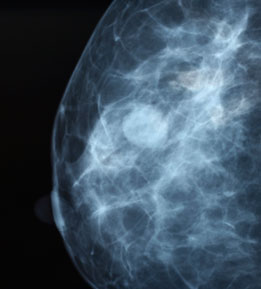 Study Casts Doubt On Early Stage Breast Cancer Treatment Uci