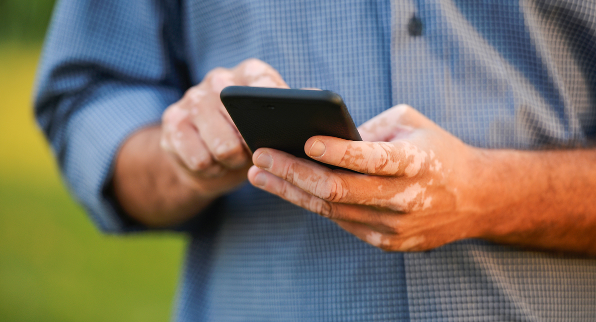 Vitiligo Help For A Disfiguring Skin Disorder Uci Health Orange County Ca